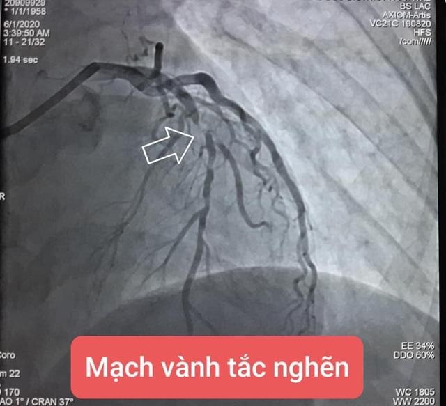 Tự dừng thuốc vì sợ khám dính Covid-19, bệnh nhân suýt chết vì đau ngực - 1