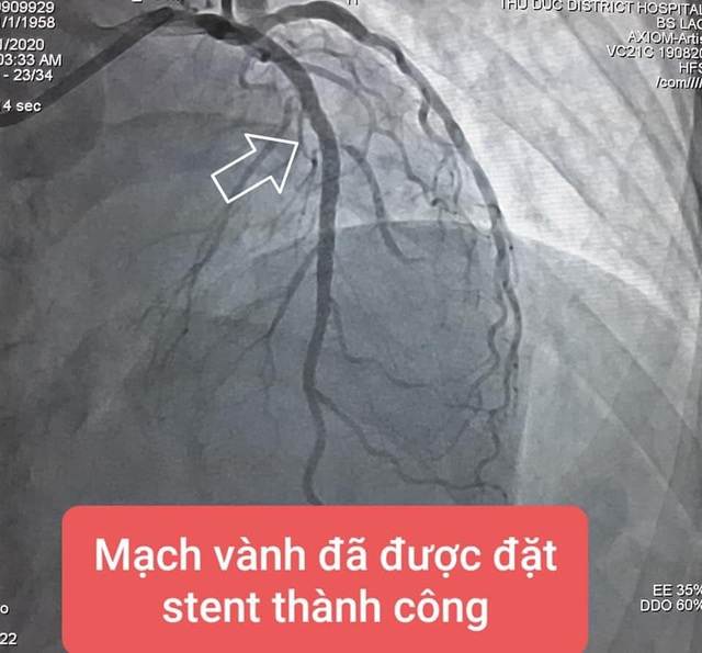 Tự dừng thuốc vì sợ khám dính Covid-19, bệnh nhân suýt chết vì đau ngực - 3