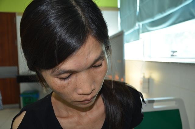 Bác sĩ bệnh viện Bạch Mai kêu gọi giúp đỡ người đàn ông đang nguy kịch - 2