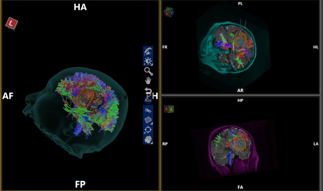 Nam bệnh nhân được mổ não khi vẫn tỉnh táo, trò chuyện bình thường - 2