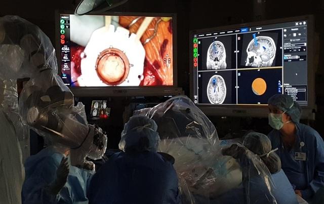 Nam bệnh nhân được mổ não khi vẫn tỉnh táo, trò chuyện bình thường - 5