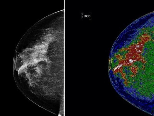 Các yếu tố nguy cơ gây ung thư vú là gì? - 1