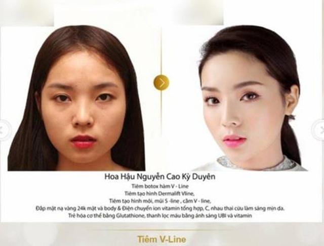 Tình duyên, nhan sắc của Top 3 Hoa hậu Việt Nam 2014 sau 6 năm - 3