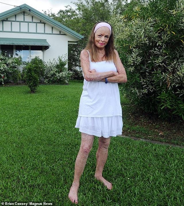 Cảm phục nghị lực sống của Hoa hậu bị bỏng 85% cơ thể - 8