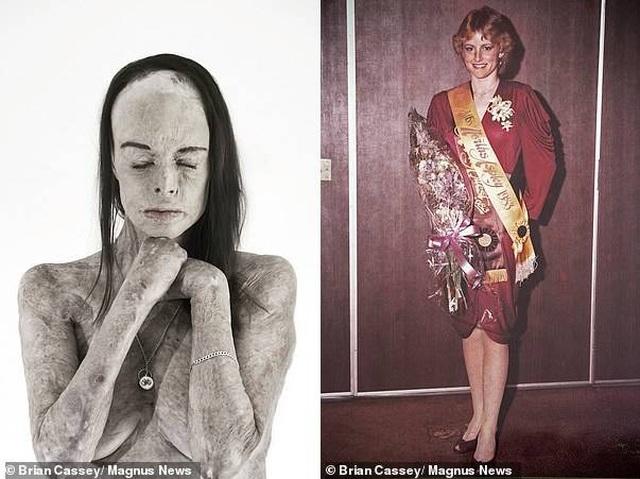 Cảm phục nghị lực sống của Hoa hậu bị bỏng 85% cơ thể - 2