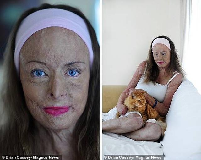 Cảm phục nghị lực sống của Hoa hậu bị bỏng 85% cơ thể - 6