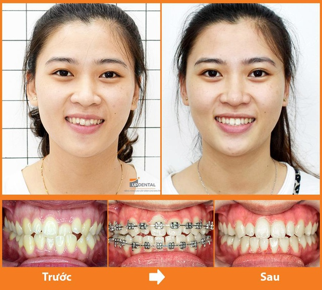 Up Dental: 9x niềng răng giá rẻ 1 triệu/tháng và kết quả bất ngờ - 2