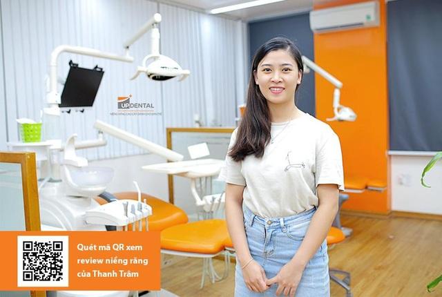 Up Dental: 9x niềng răng giá rẻ 1 triệu/tháng và kết quả bất ngờ - 3