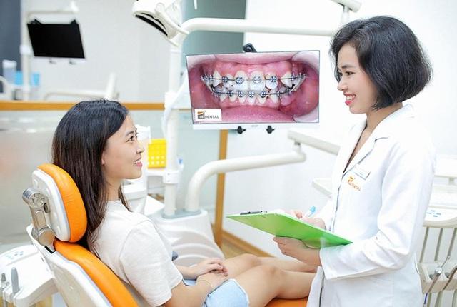 Up Dental: 9x niềng răng giá rẻ 1 triệu/tháng và kết quả bất ngờ - 4