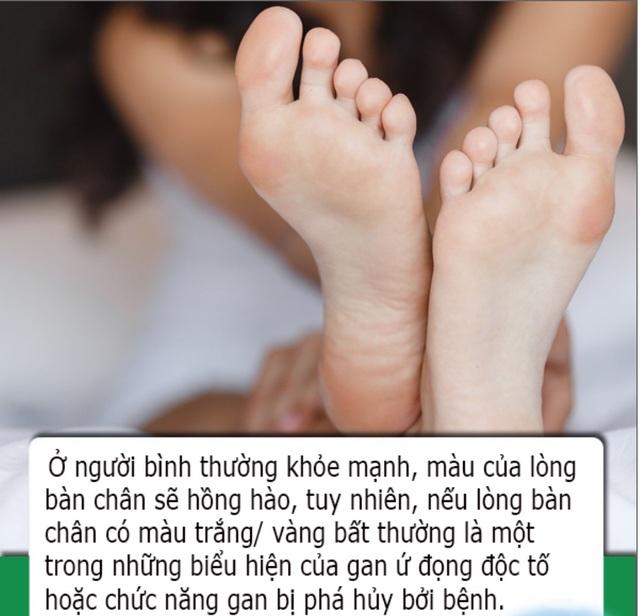 Bàn chân có 4 dấu hiệu này cho biết sức khỏe lá gan của bạn đang suy giảm - 1