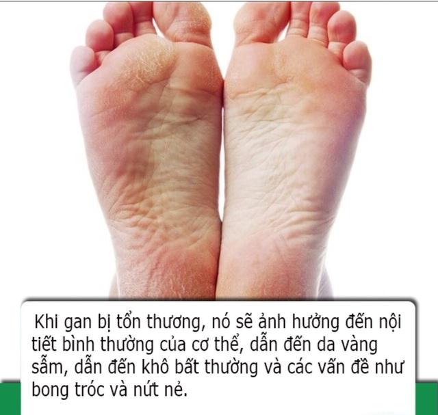 Bàn chân có 4 dấu hiệu này cho biết sức khỏe lá gan của bạn đang suy giảm - 2