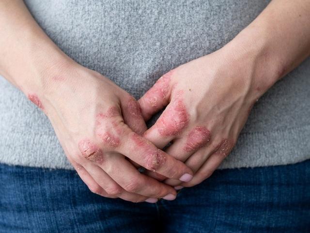 Tìm ra giải pháp giúp hỗ trợ cho người bị vảy nến, viêm da cơ địa - 1