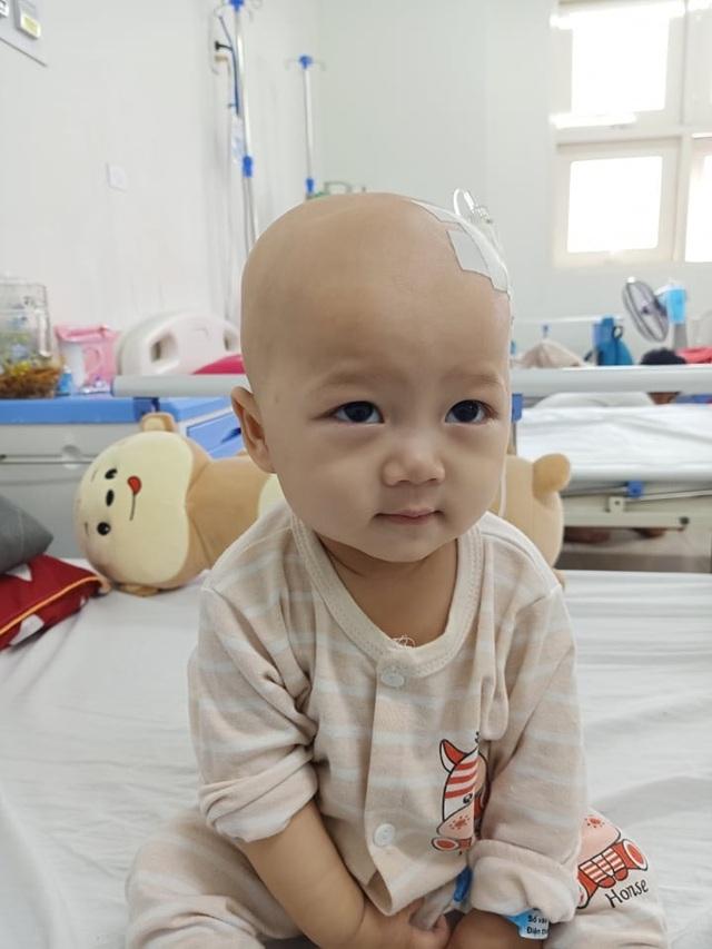Cầu mong phép mầu đến với bé trai 1 tuổi bị ung thư kép hành hạ - 3