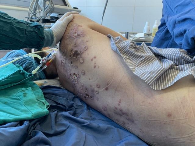 Sởn da gà tình cảnh người phụ nữ bị vi khuẩn ăn mòn cơ thể đến nguy kịch - 3