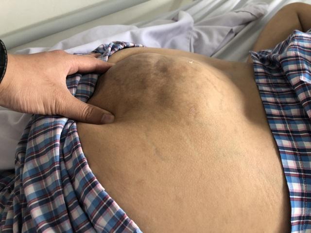 Xót thương cô gái dân tộc Thái suốt 10 năm sống chung với khối u khổng lồ - 3