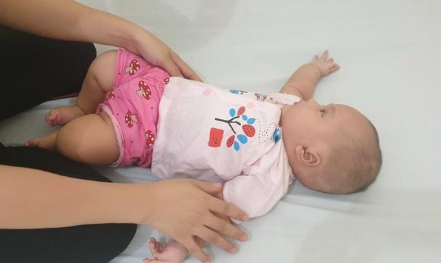 Hoảng hồn khối thoát vị não - màng não to như quả dừa ở bé gái 3 tháng tuổi - 4