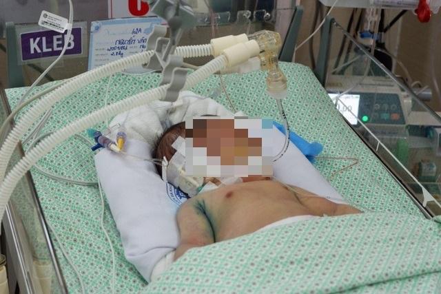 Bé sơ sinh bị bỏ rơi không qua khỏi vì sốc nhiễm khuẩn sau 21 ngày điều trị - 1