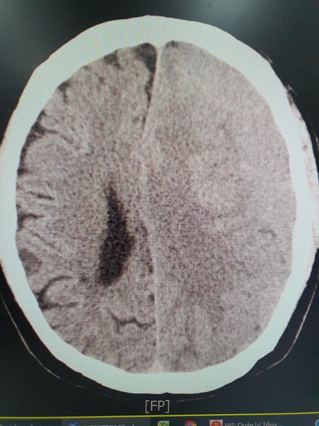 Hà Nội: Người đàn ông hôn mê vì uống an cung ngưu hoàng ngừa tai biến não - 1