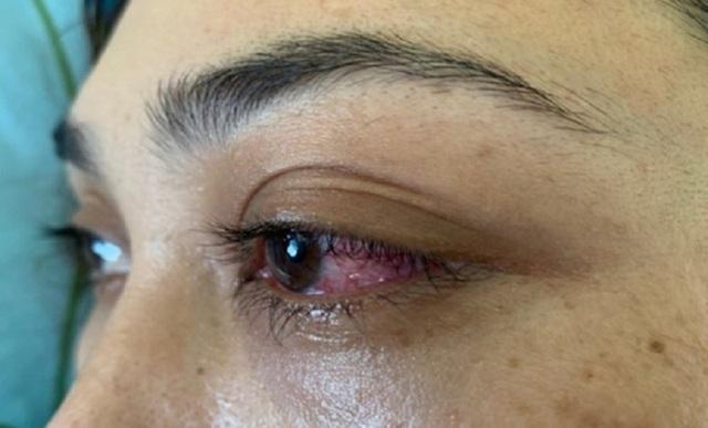 Tưởng đau mắt đỏ, bệnh nhân suýt mù vì bệnh lý hiếm gặp - 1