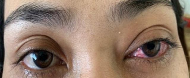Tưởng đau mắt đỏ, bệnh nhân suýt mù vì bệnh lý hiếm gặp - 3