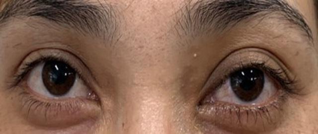 Tưởng đau mắt đỏ, bệnh nhân suýt mù vì bệnh lý hiếm gặp - 4