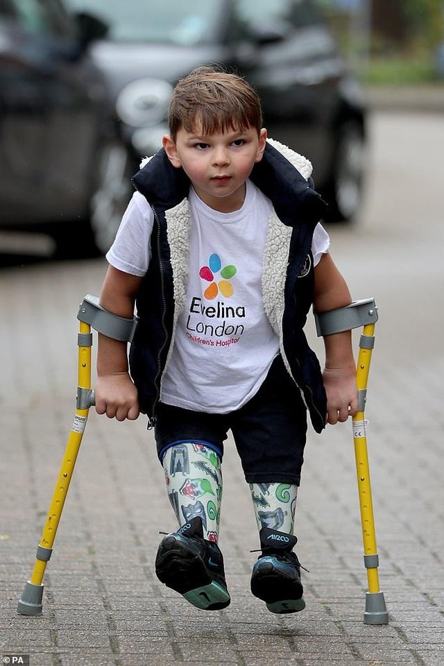 Cảm phục nghị lực của cậu bé từng bị bạo hành đến mức phải cưa chân - 1