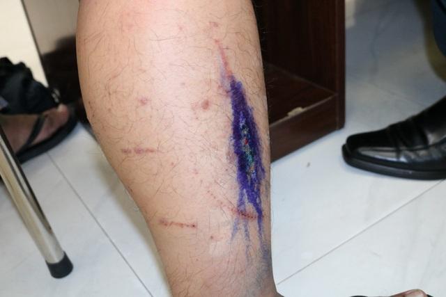Báo động tình trạng kiến ba khoang tấn công, 100 bệnh nhân khám mỗi ngày - 2
