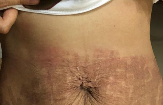 """Thẩm mỹ viện """"ma"""" dùng tế bào gốc dỏm làm """"cháy"""" bụng bệnh nhân - 2"""