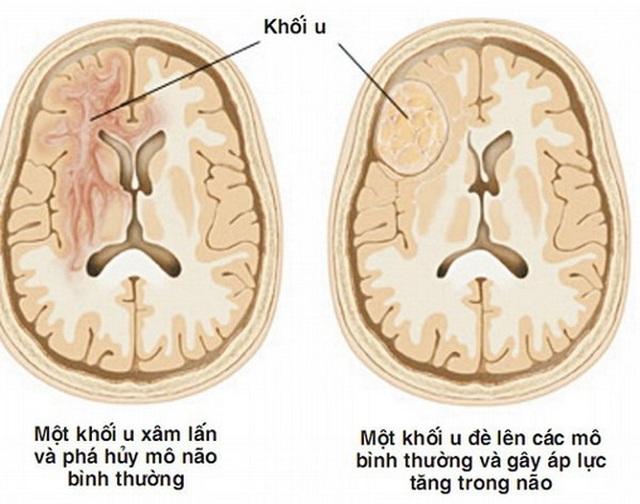 Dấu hiệu cảnh báo u não - 1