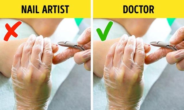 Những điều nguy hiểm thợ làm móng tay không bao giờ chia sẻ với khách hàng - 3