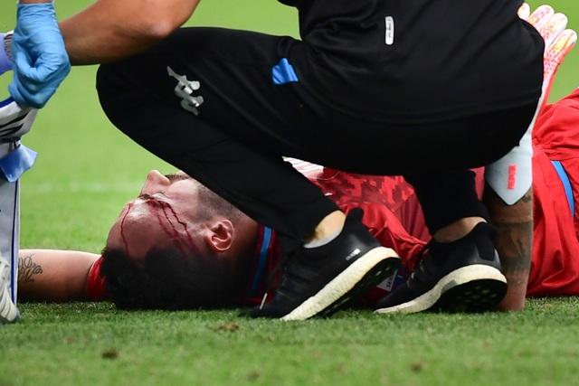 Cựu thủ môn Arsenal gặp chấn thương kinh hoàng sau nỗ lực cản phá bóng - 2