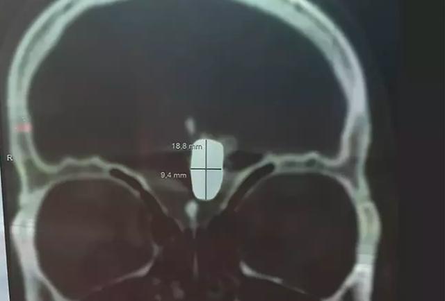 Ăn mừng 10 năm sống bình thường với một viên đạn trong não - 2