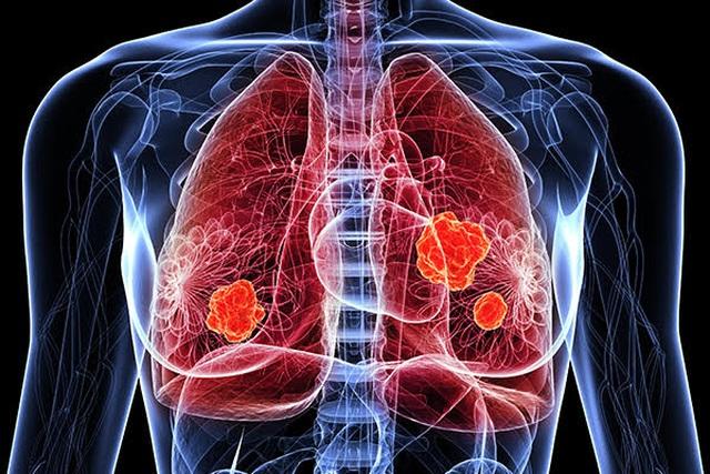 Bạn có nguy cơ mắc loại ung thư nào cao nhất? - 3
