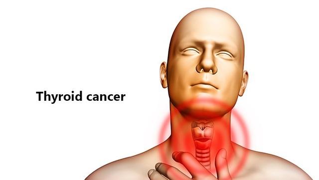 Bạn có nguy cơ mắc loại ung thư nào cao nhất? - 7