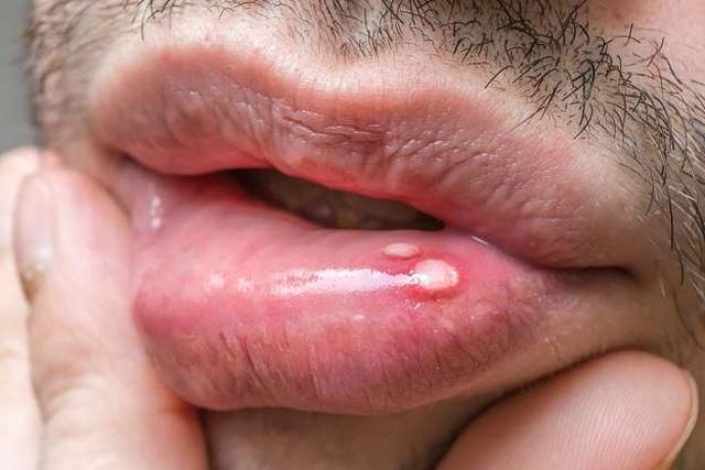 13 dấu hiệu ung thư ở nam giới không nên bỏ qua - 3