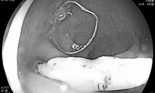 Quảng Bình: Nữ bệnh nhân 26 tuổi bị vòng tránh thai đâm thủng trực tràng - 1