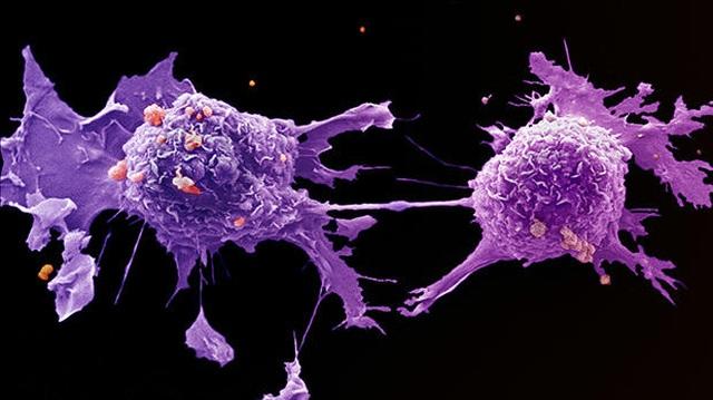1 dấu hiệu có thể chỉ điểm cả 5 loại ung thư người Việt thường mắc phải - 2