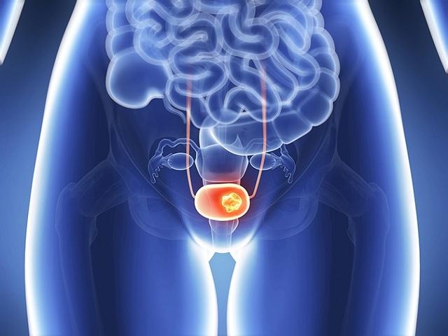 Thường xuyên ăn súp lơ xanh để bảo vệ cơ thể trước 6 loại ung thư phổ biến - 5