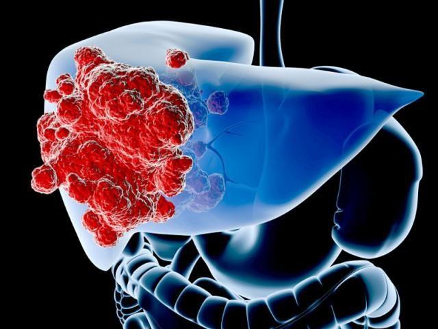 Xét nghiệm máu giúp tầm soát những loại ung thư nào? - 7