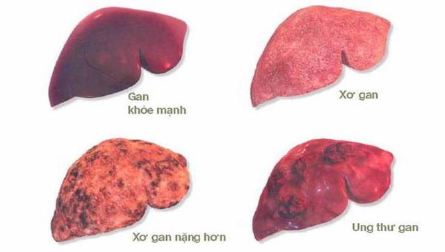 Các phương pháp điều trị ung thư gan hiện nay? - 2