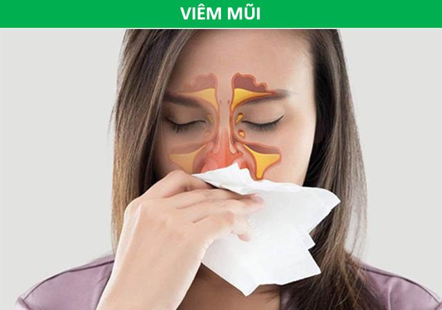 Cảnh giác với nhiều bệnh nguy hiểm khi mắt xuất hiện quầng thâm - 4