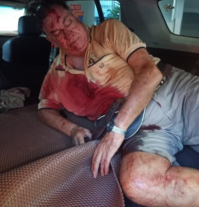 """""""Ông Tây"""" quyết chặn xe ngược chiều, hôm sau bị tai nạn nghiêm trọng - 2"""