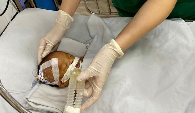 Bé trai sơ sinh bị bỏ rơi hôn mê trước cổng chùa - 1