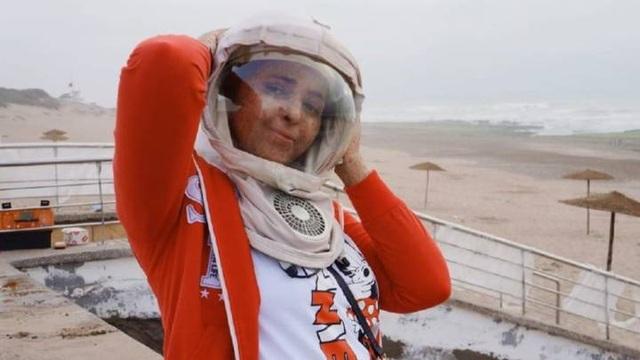 Mắc bệnh lạ, cô gái 26 năm ròng phải đội mũ bảo hiểm không gian - 1