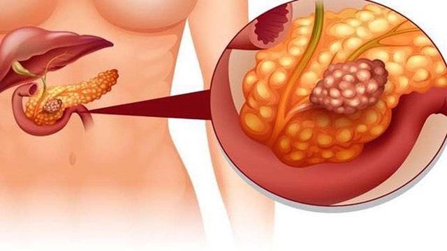 Loại ung thư nguy hiểm bệnh nhân tiểu đường cần đặc biệt cảnh giác - 7
