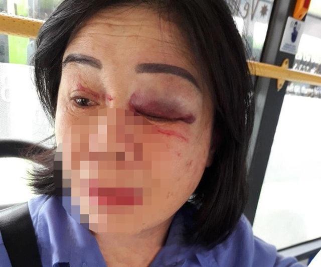 Nhắc mở nhạc nhỏ, nữ tiếp viên xe buýt bị hành khách đánh bầm mắt - 1