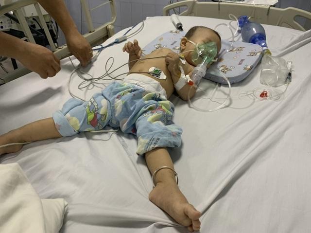 Quặn lòng cảnh bé hơn 1 tuổi co giật từng cơn trong đau đớn - 3