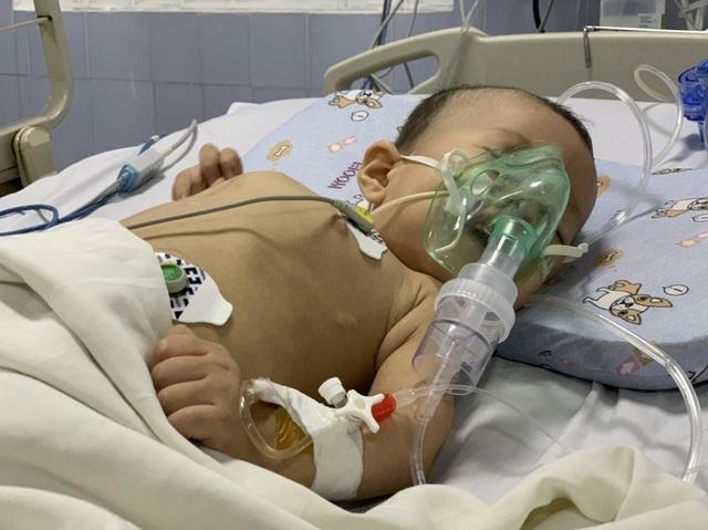 Quặn lòng cảnh bé hơn 1 tuổi co giật từng cơn trong đau đớn - 2