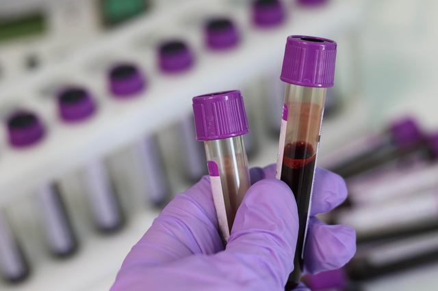 Phương pháp xét nghiệm không xâm lấn phát hiện mầm mống ung thư trước 4 năm - 1