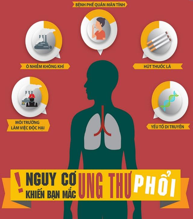 Ung thư phổi: Sàng lọc sớm hiệu quả điều trị cao - 1